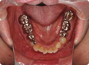 治療内容-審美歯科
