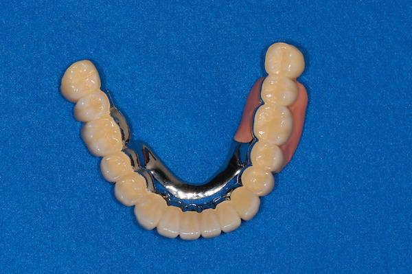 治療内容-入れ歯