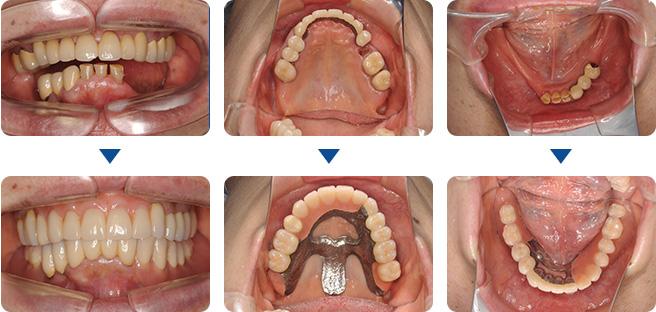 入れ歯の治療例