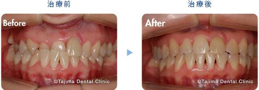 前歯が反対になっていたのを審美的に治療(30代女性)