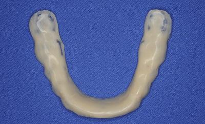 STEP1 骨格診断をもとにしたスプリント治療