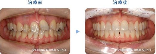 歯列からはずれた一本の歯を、抜かずに矯正(30代女性)